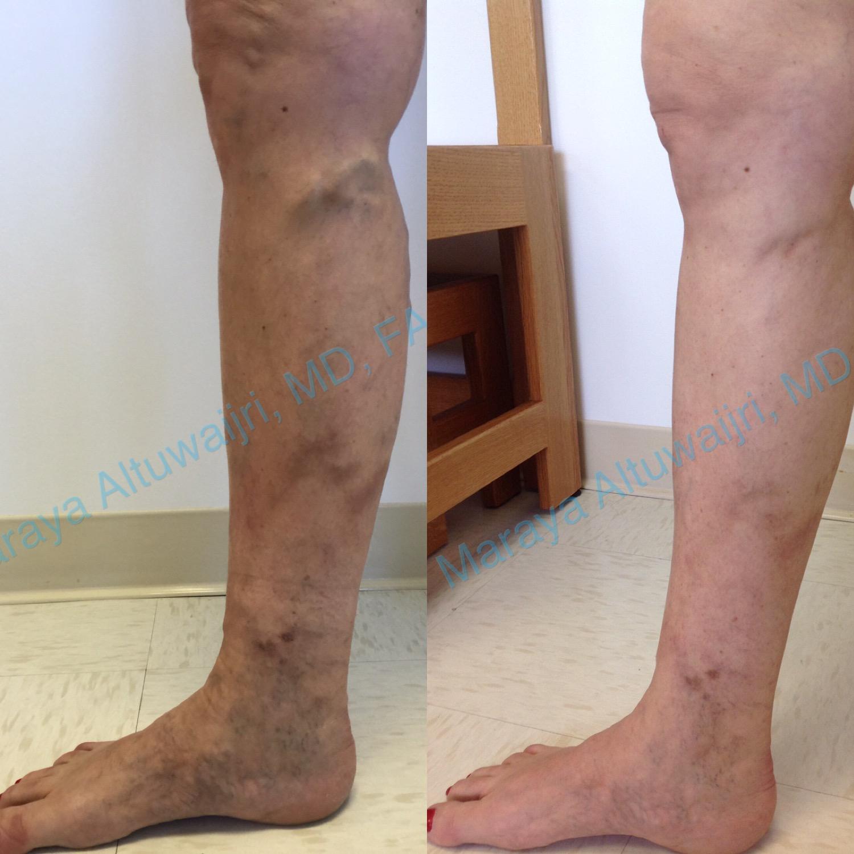 Varicose Vein Treatment