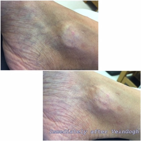 Ankle spider veins treated with the VeinGogh. Mild redness seen immediately after treatment is temporary.