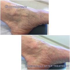 Small spider veins are common around the ankle area may give the appearance of a bluish discoloration or bruising. Treatment of spider veins with the VeinGogh is an excellent choice achieving an immediate result without any injectables.
