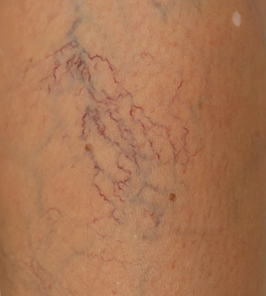 What is my best option for spider vein treatment?