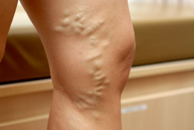 I was told I need varicose vein surgery. Is there any other solution?