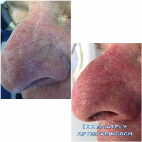 A few minutes of your time pays off with VeinGogh. Easy and painless treatment of facial spider veins. Immediate results with slight redness lasting on average a few hours.