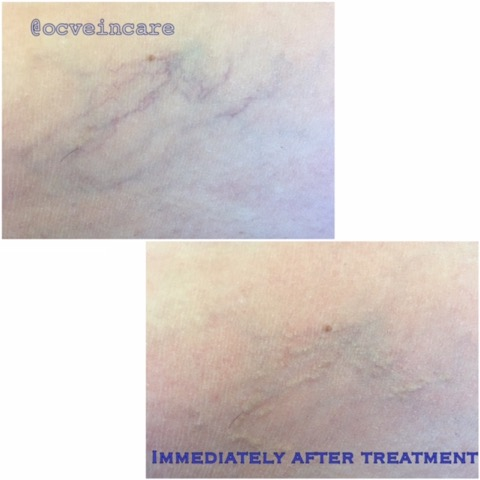 A local area of spider veins in the thigh area treated with the VeinGogh. Average time for a small area is 5 minutes.